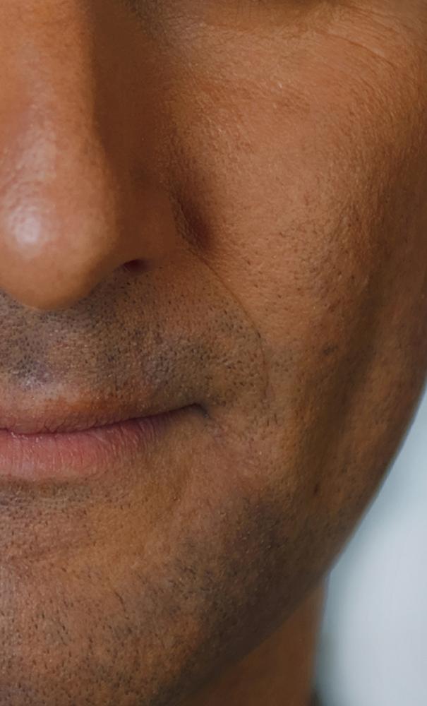 Dermatology study patient